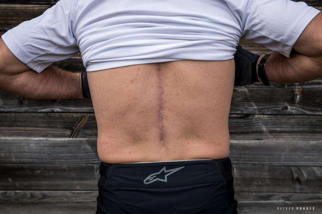 Профайлы и интервью: Брук Макдональд: Год после перелома позвоночника