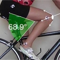 О горном велосипеде: Боль в коленях от катания