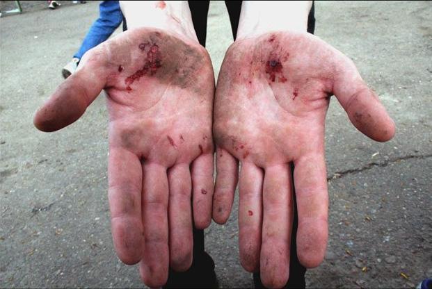 Блог им. TApoK: Небольшой опрос: Катаетесь ли вы в перчатках?