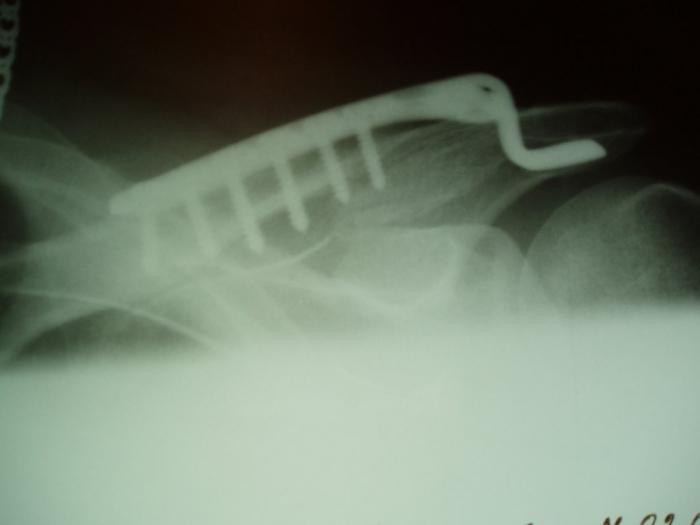Буз во вологодская детская стоматологическая поликлиника 2 г.вологда