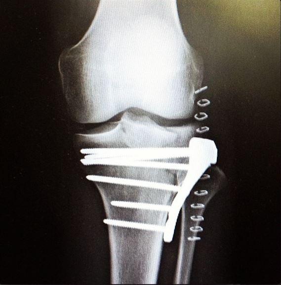 Kurt Sorge broken leg